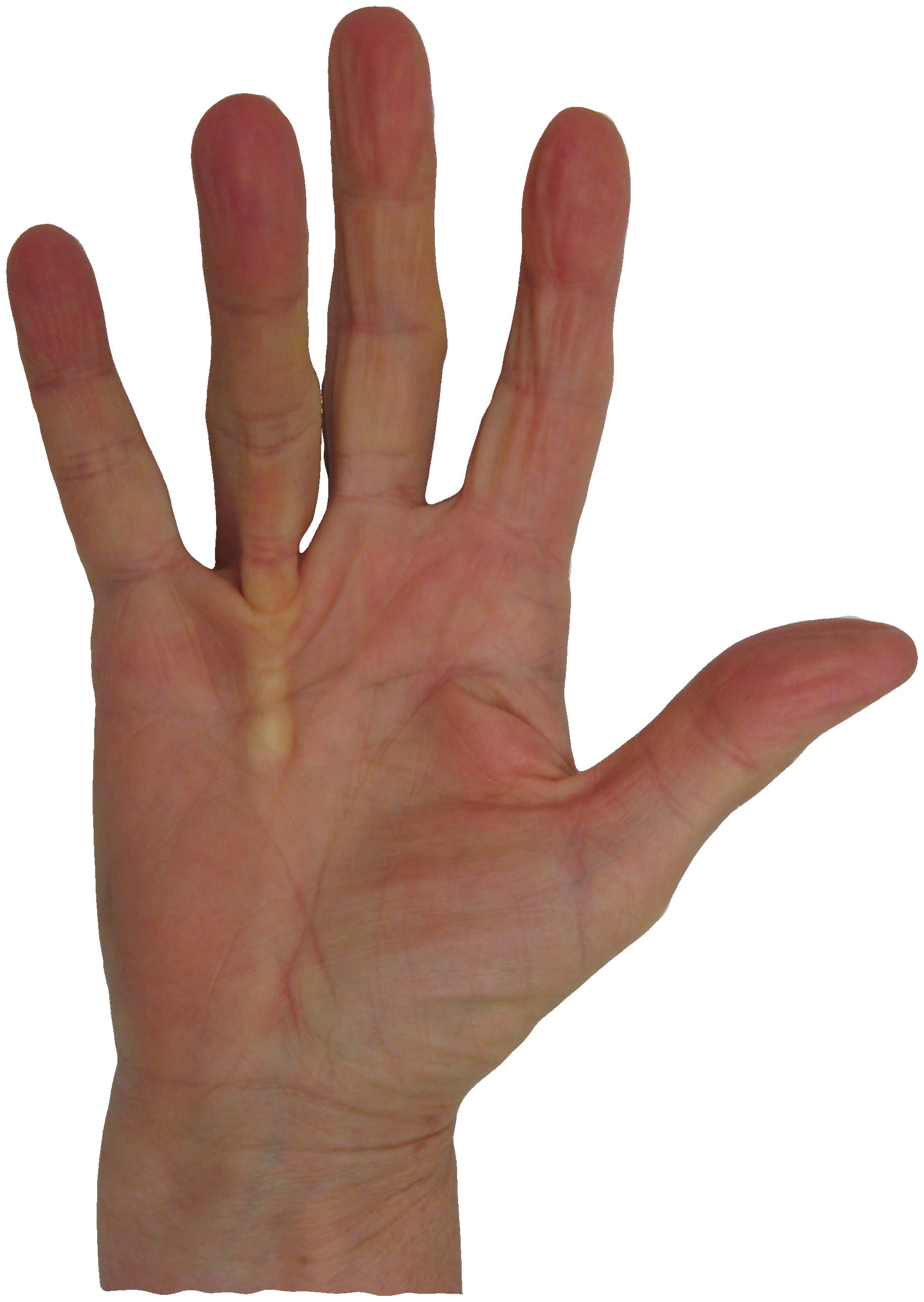 Dupuytren Disease: A hand condition that affects millions, but is still new to many
